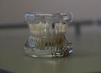 Implanty zębowe - jak wybrać stomatologa