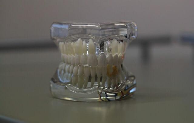 Zęby z implantem